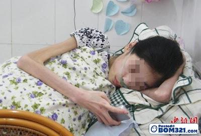 Tumor Besar Di Perut Wanita