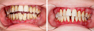 Gum Disease Treatment