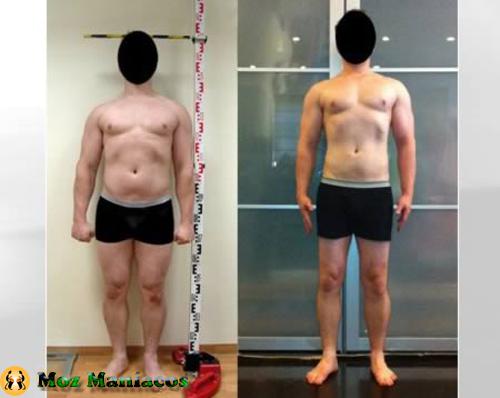 O homem que fez cirurgia dolorosa para crescer cerca de 6cm