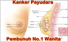 obat kanker payudara alami