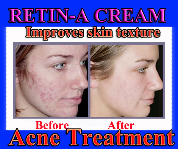 Buy Retino A Cream 0025, Retino AC, Buy Tretinoin