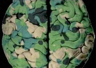 zombie soldier's brain