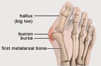 Bahaya Sepatu High Heels Ujung Runcing – Bunions akibat Sepatu Hak tinggi
