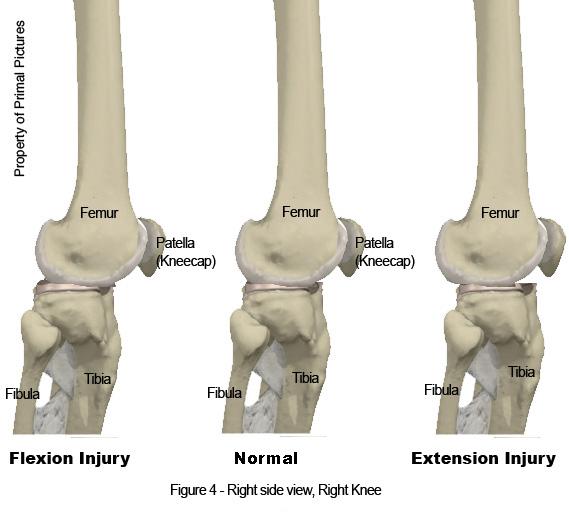 Knee Job-2.bp.blogspot.com