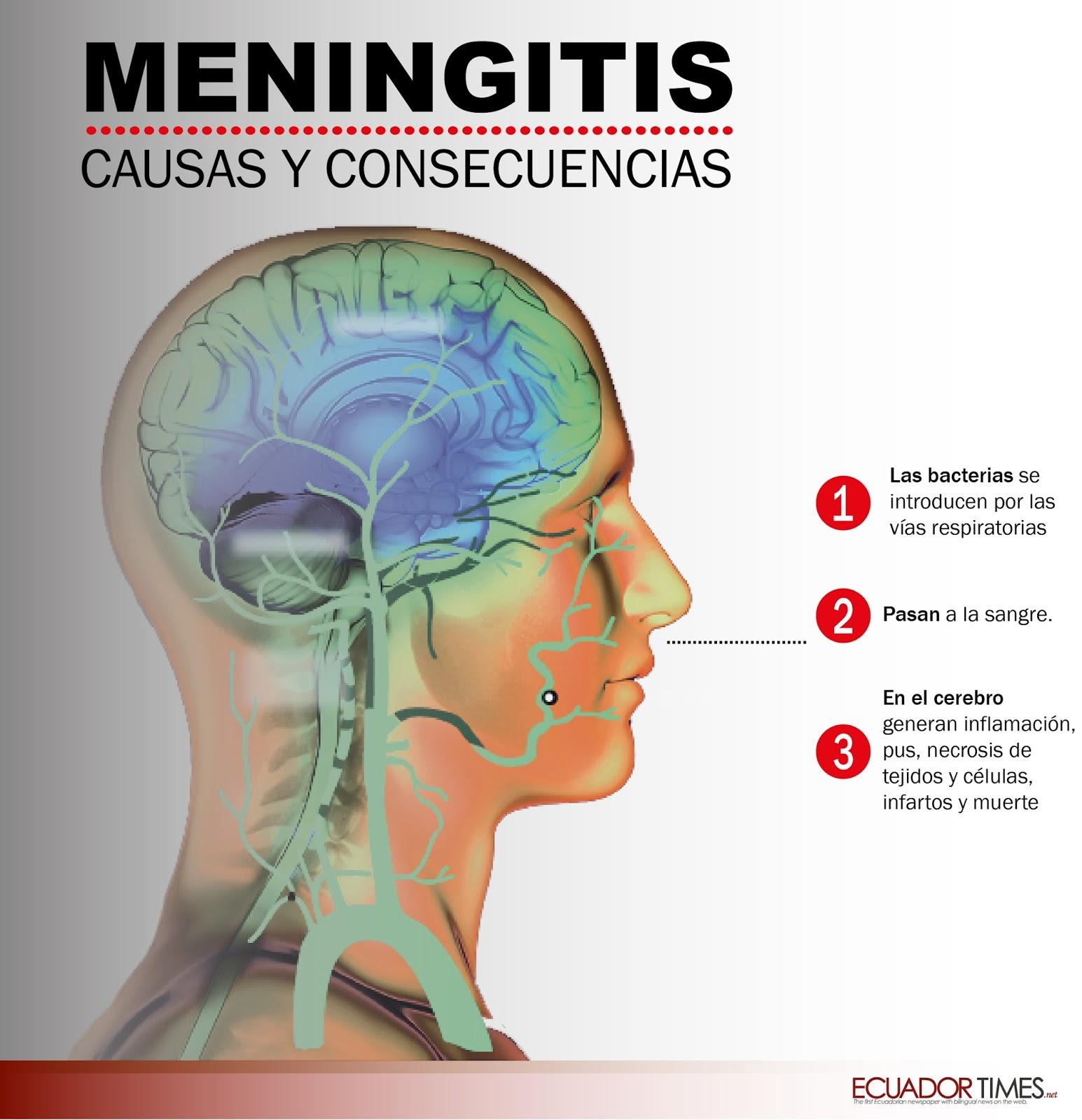 Virales síntomas de la meningitis en adultos mayores