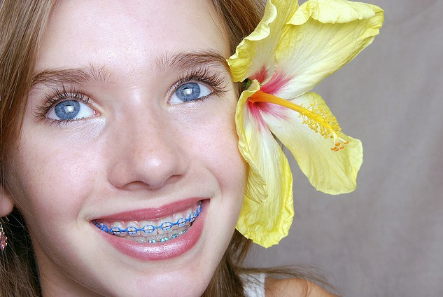 Braces Option for Kids