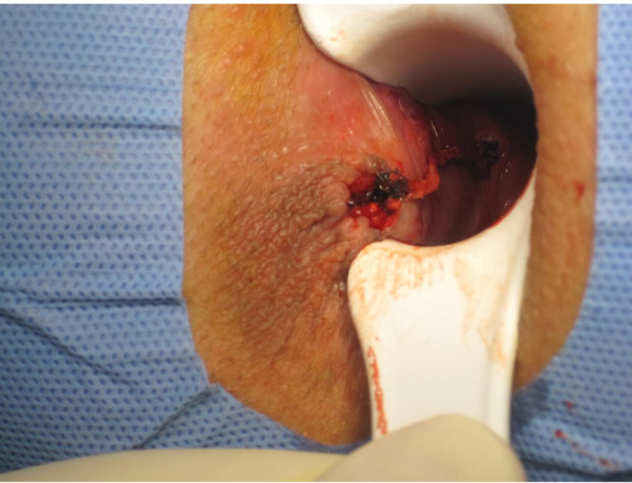 hemorrhoidectomy is the removal of hemorrhoidal tissue which contain    Internal Hemorrhoid Swelling