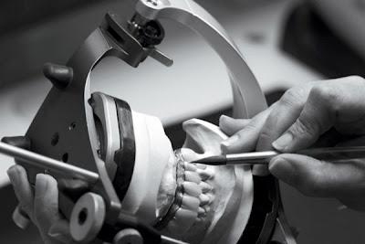 curso de implante