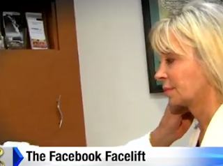 http://www.click2houston.com/news/houston-plastic-surgeon-develops-facebook-facelift_20151123153356570