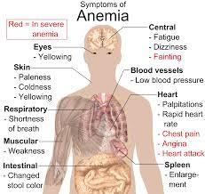 Bagian Tubuh Yang berhubungan dengan anemia