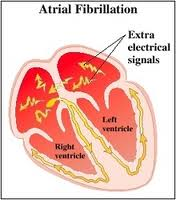 symptoms of atrial fibrillation and treatment