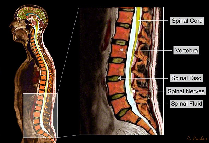 Lumbar Spine Color MRI showing the Normal Anatomy