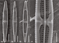 http://sciencythoughts.blogspot.co.uk/2015/04/three-new-species-of-diatoms-from-skin.html