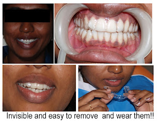 Invisible braces treatment