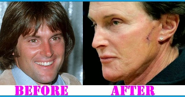 Plastic Surgery Before And After Bruce Jenner Plastic