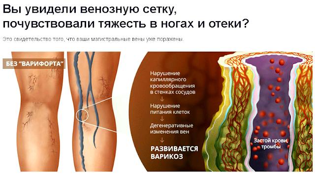 Подушка Варифорт от варикоза