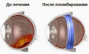 Центр по коррекции зрения сыктывкар