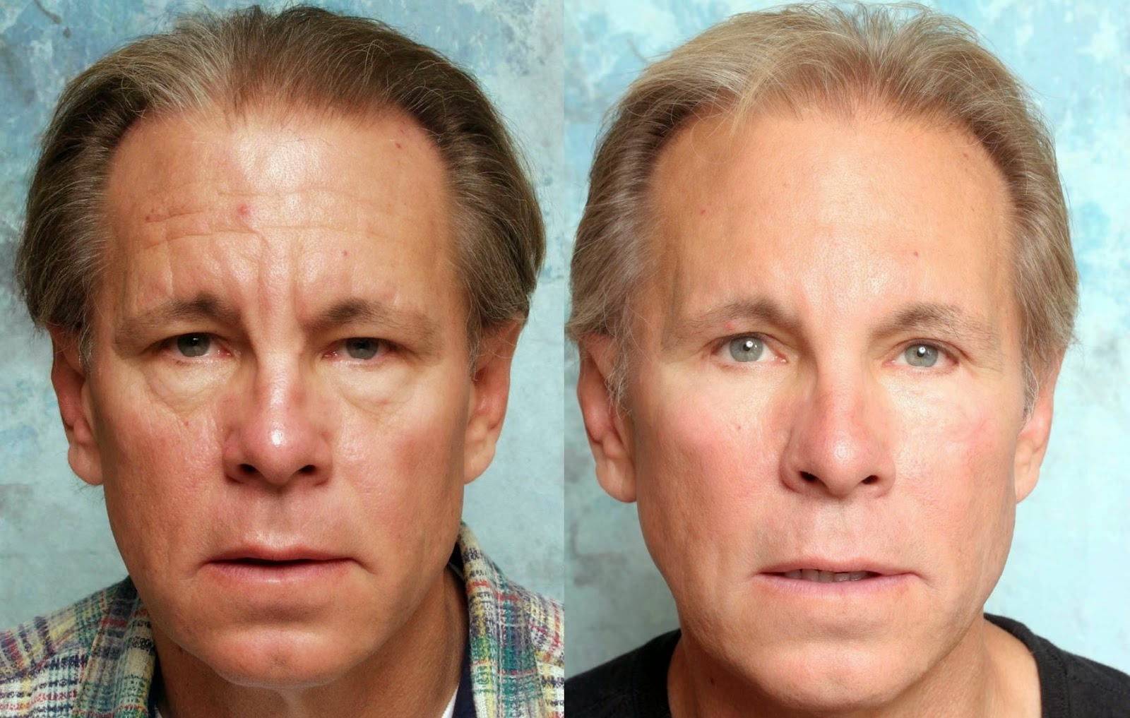 from Chaim facial exercises before and after