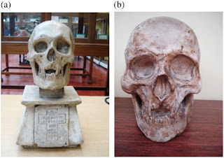 Fig. 2. (a) The cast of Robert Bruce's skull used for manual measurement of width and length (b) The cast of Robert Bruce's skull used for magnetic resonance imaging measurement