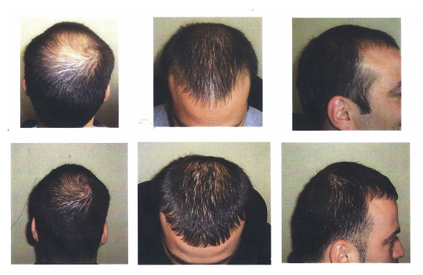 Hair Growth Laser