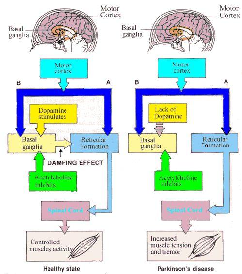 Classification Parkinson's disease |Genetic Engineering Info