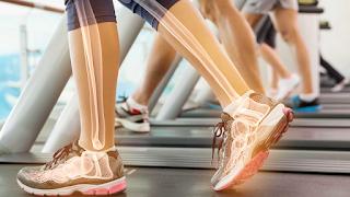Fraturas aumentam com a Osteoporose