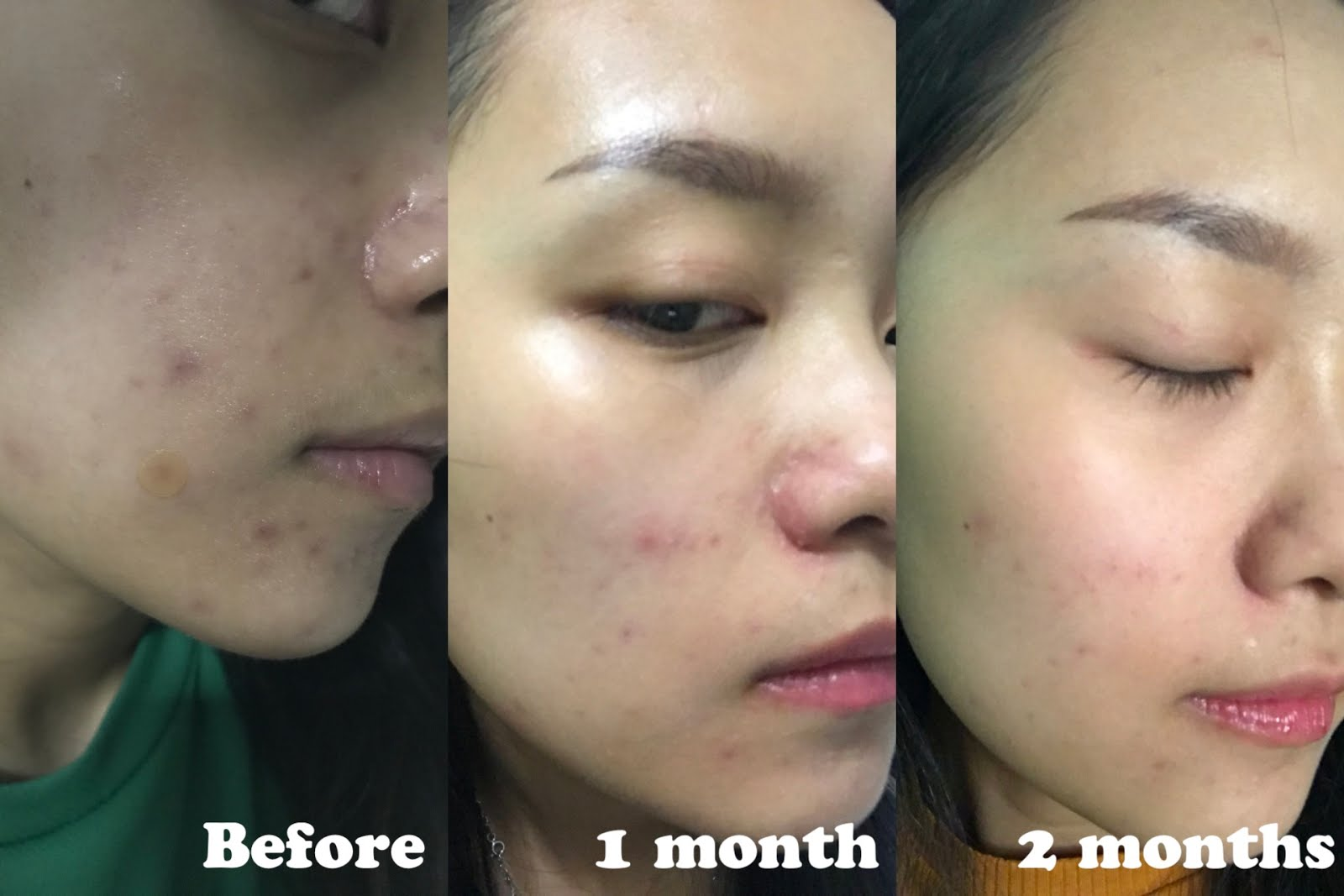 Review The Ordinary Salicylic Acid 2 Solution Bye Blemish