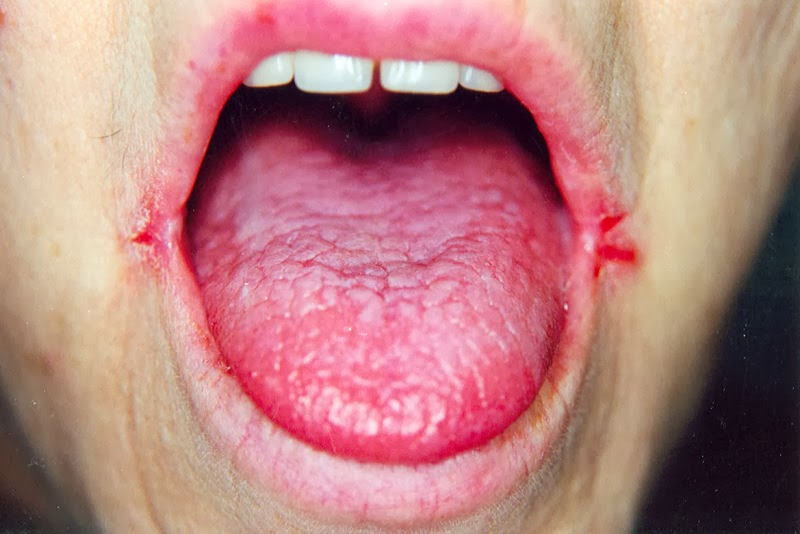 eczema steroids don't work