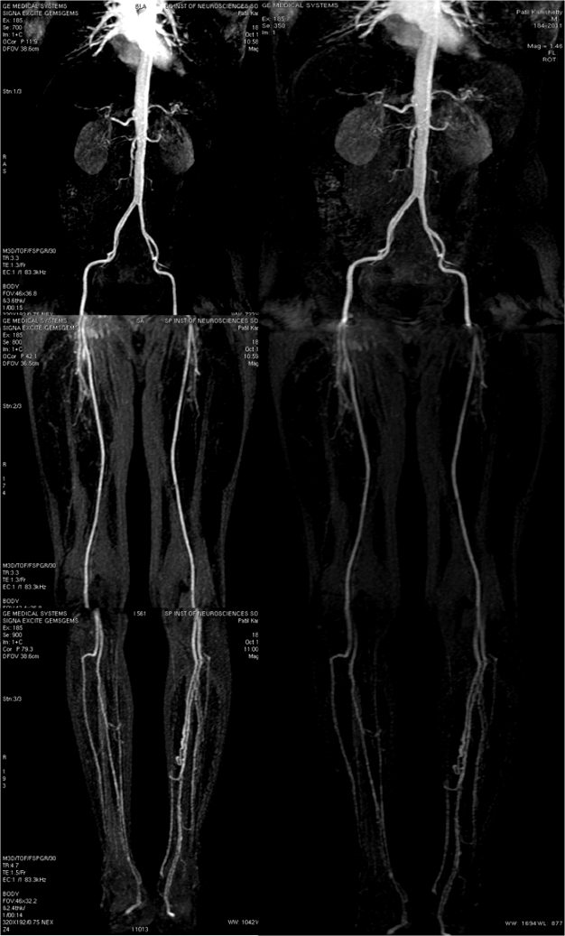 Spin radiographers contrast enhanced mr angiography of abdominal contrast enhanced mr angiography of abdominal aorta and lower extremity sciox Image collections