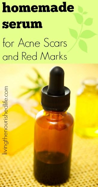 Homemade Serum for Acne Scars and Red Marks