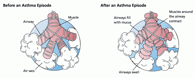 Asthma Airways