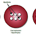 Myofibrillar Hypertrophy