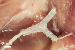 3-D Printed Guide Helps Regrow Nerves After Injury