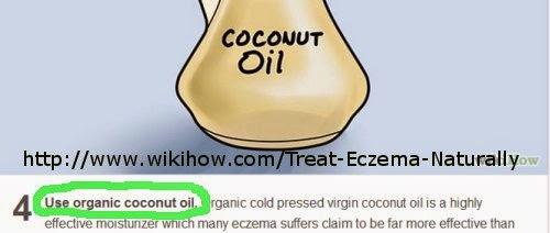 ubat kulit eczema