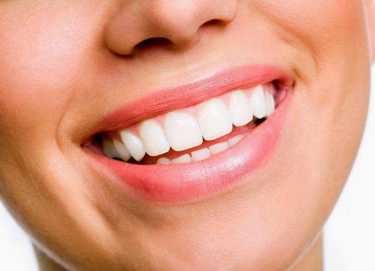 lima tips cara mudah 5 memutihkan gigi putih alami memiliki sehat