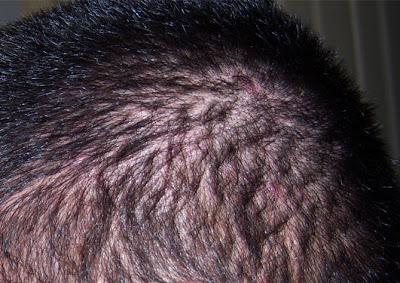 scalp acne, acne, facial acne