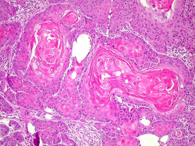 Niveis baixos de catalases favorecem o cancer de pele masculino