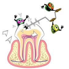 Cara Mengatasi Sakit Gigi Berlubang dengan Herbal