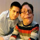 Rara doença genética provoca graves sequelas em irmãos gêmeos idêntico