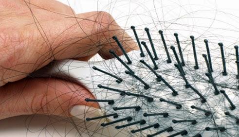 masalah rambut gugur, zink complex, saya jual shaklee, pengedar shaklee kuantan,