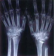 Röntgen ışınları