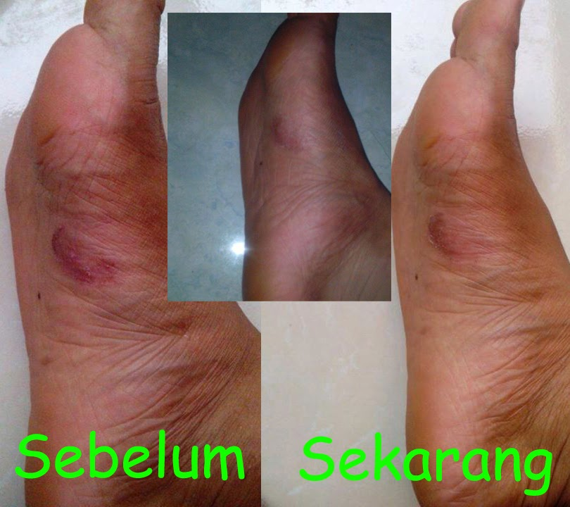 cara menghilangkan bekas luka di kaki