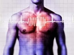 Arrhythmias: Causes, Symptoms, Types Diagnosis and Treatment for Arrhythymias