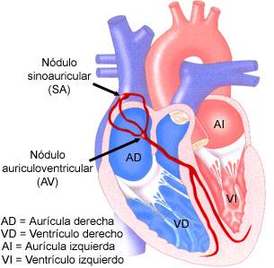 CK-MB,troponina T,infarto,hemocromatosis,ferritina elevada