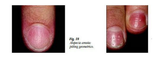 Unghie picchiettate -Pitting (depressioni cupoliformi)