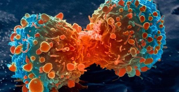 http://www.ciencia-online.net/2013/06/cancro-factos-e-sintomas.html