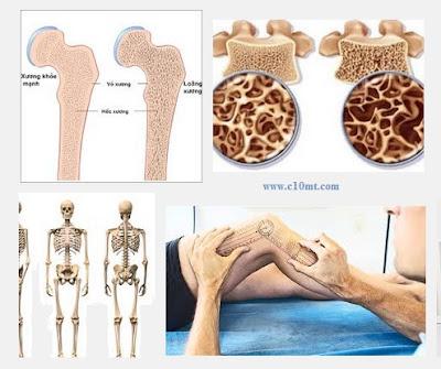 Các yếu tố và nguyên nhân gây bệnh loãng xương