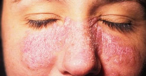 cold induced rash - Allergy - MedHelp