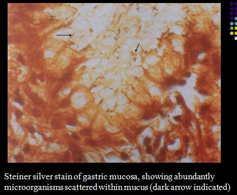 Learn Medicine Quickly Peptic Ulcer