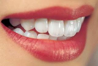 7 nguyên nhân khiến răng ê buốt bạn nên tránh 2